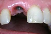 Inseriertes Zahnimplantat für eine Frontzahnkrone