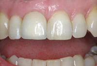 Die echt wirkende Krone auf Zahnimplantat im Mund