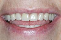 Echt wirkende Prothese auf Zahnimplantaten