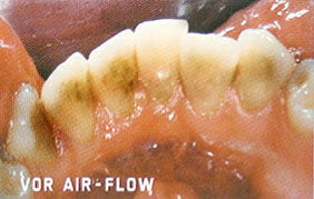 Zähne vor der Air-Flow Behandlung
