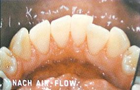 Zähne nach der Air-Flow Behandlung