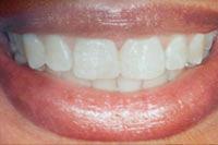 Frontzahnveneers nachher: Zahnlücke geschlossen