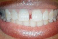 Frontzahnveneers vorher: Zahnlücke