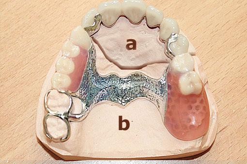 Teleskopprothese mit Transversalband auf Modell – Zahn Docs Diez