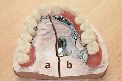 Der linke Teil (a) der Prothese zeigt im Vergeleich eine gaumenfreie Lösung, die sich noch auf mehrere Restzähne abstützen kann, während rechts (b) ein gaumenbedeckendes Transversalband benötigt wird, da nur wenige Pfeiler vorhanden sind – Zahn Docs Diez