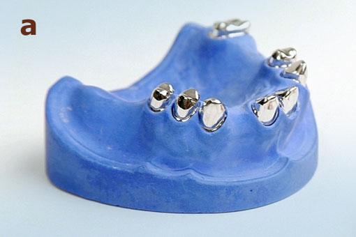 Hochwertige Zahnprothetik – Modell der Pfeilerzähne für eine Teleskopprothese