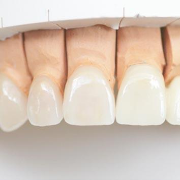 Zahnärztliche Implantologie bei Frontzahnkronen
