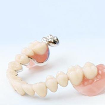 Hochwertige Zahnprothetik der Zahnärzte in Diez