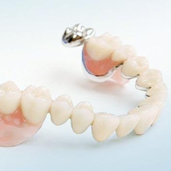 Hochwertige Zahnprothetik – Teleskopprothese