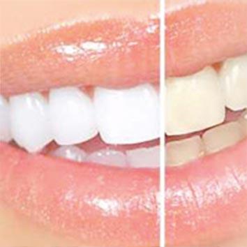 Bleaching – weiße Zähne durch Zahnaufhellung
