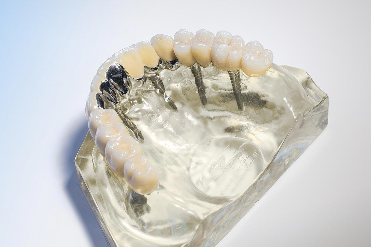 Zahnfleisch, das nicht an Zahnprothesen klebt