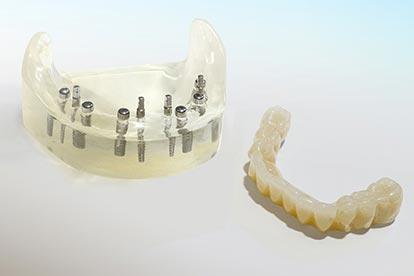 Festsitzender provisorischer Zahnersatz neben Modell mit Implantaten und Hilfsimplantaten – Zahn Docs Diez