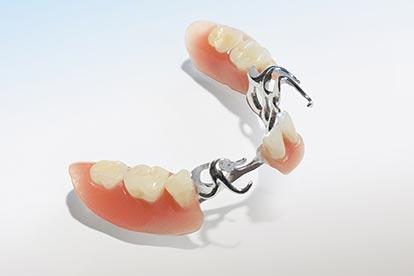 Modellgussprothese mit Metallklammern – Zahn Docs Diez