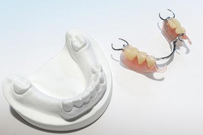 Modellgussprothese mit Metall-Sunflex-Kombination neben Modell – Zahn Docs Diez