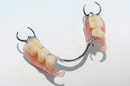 Modellgussprothese mit Metall-Sunflex-Kombination – Zahn Docs Diez