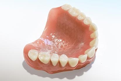Herausnehmbare Vollprothese für den zahnlosen Oberkiefer – Zahn Docs Diez
