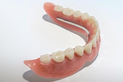 Herausnehmbare Vollprothese für den zahnlosen Unterkiefer – Zahn Docs Diez