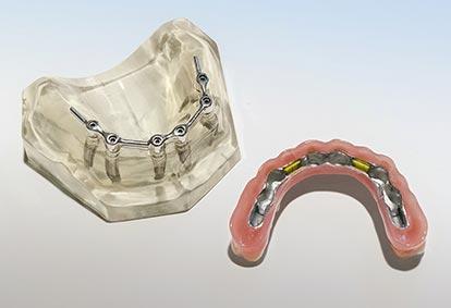 Stegversorgung und implantatgetragene Prothesenunterseite mit Clipsen – Zahn Docs Diez
