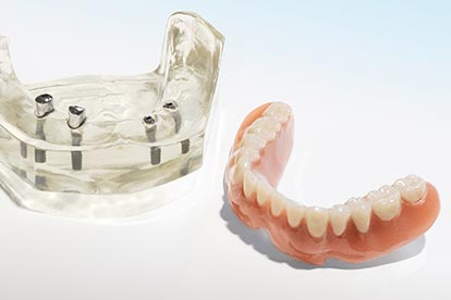 Herausnehmbare Teleskopprothese neben Modell mit Implantaten – Zahn Docs Diez