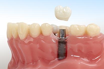 Zahnkrone und Zahnimplantat im Modell – Zahn Docs Diez