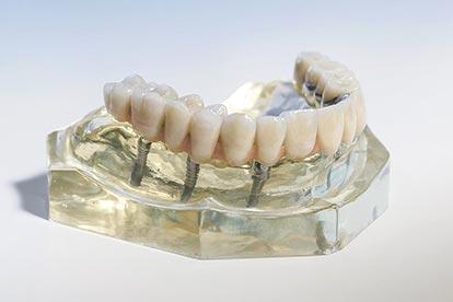 Festsitzender, implantatgetragener Zahnersatz für den zahnlosen Oberkiefer auf Modell