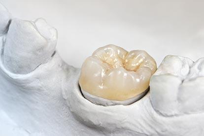 Onlay auf einem Modell – Zahn Docs Diez